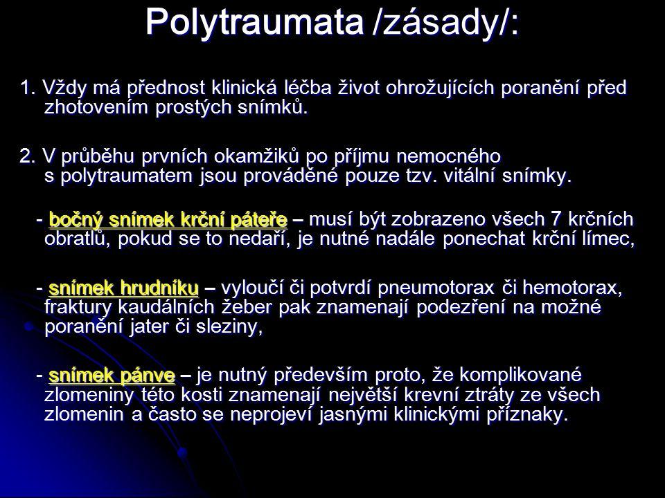 Polytraumata /zásady/: