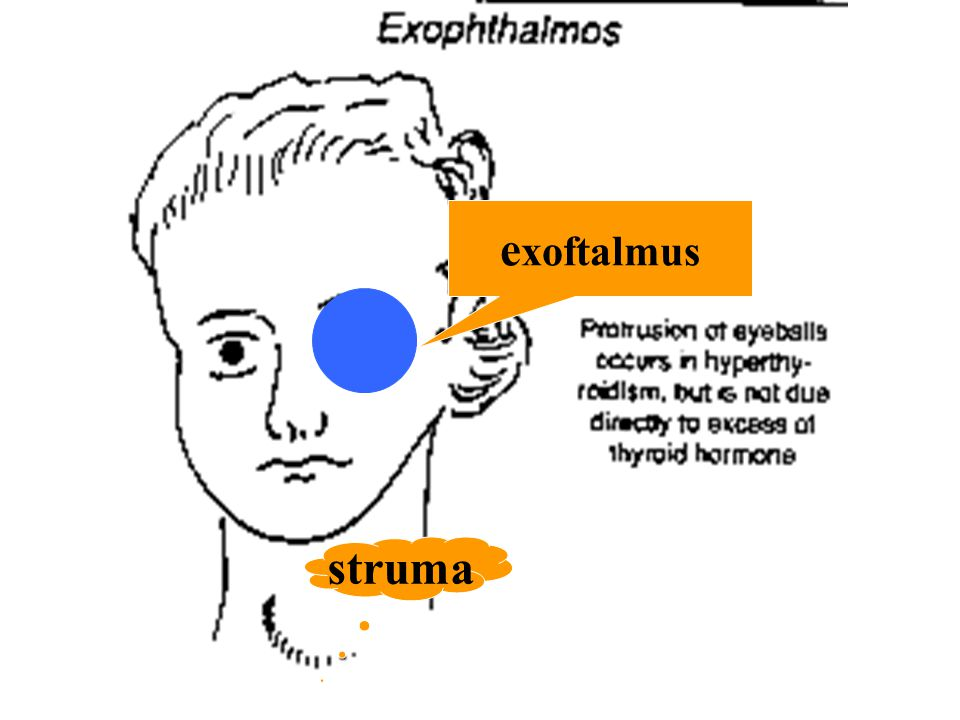 exoftalmus struma