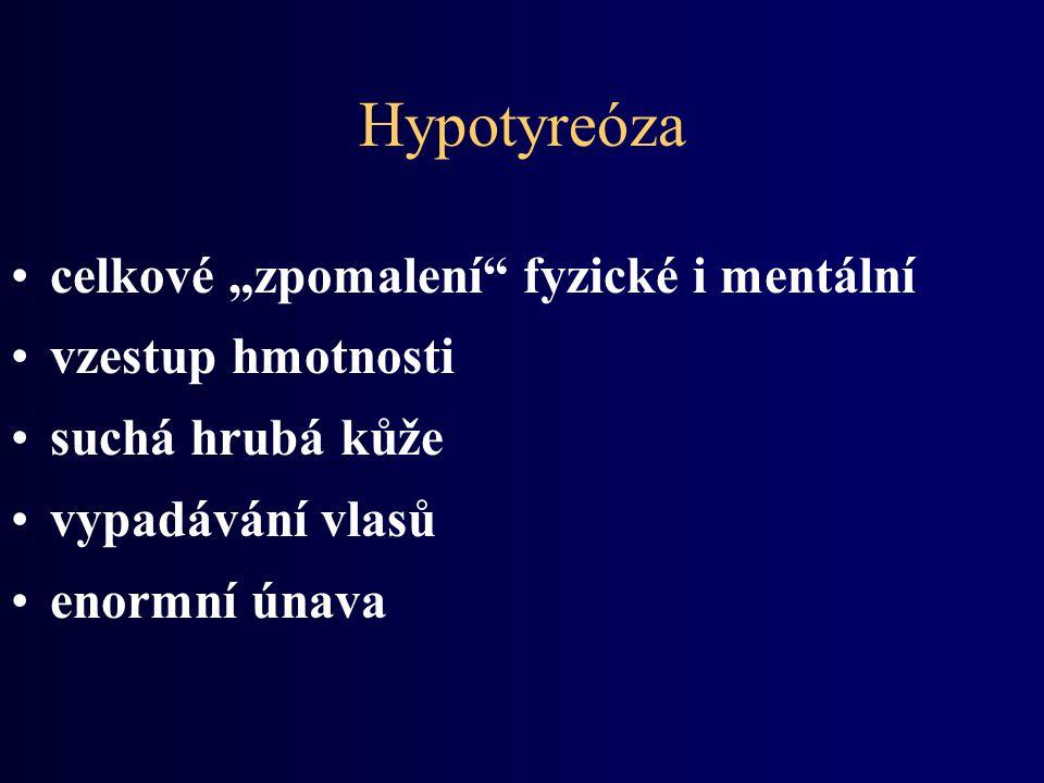 """Hypotyreóza celkové """"zpomalení fyzické i mentální vzestup hmotnosti"""
