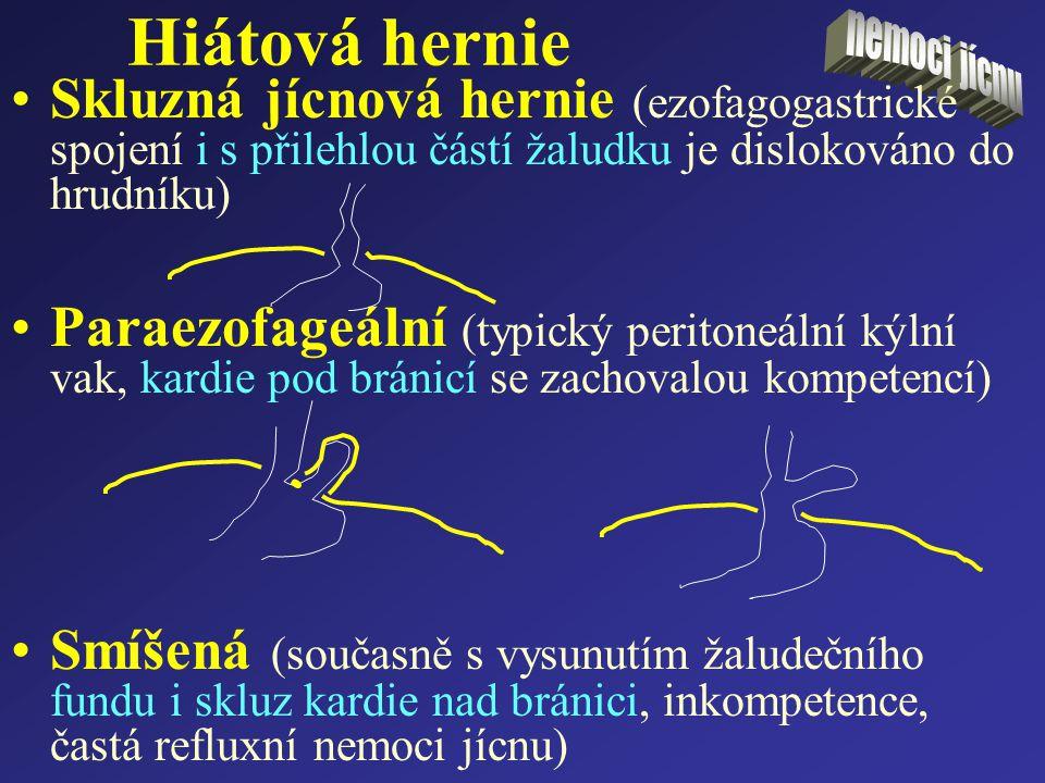 Hiátová hernie nemoci jícnu. Skluzná jícnová hernie (ezofagogastrické spojení i s přilehlou částí žaludku je dislokováno do hrudníku)