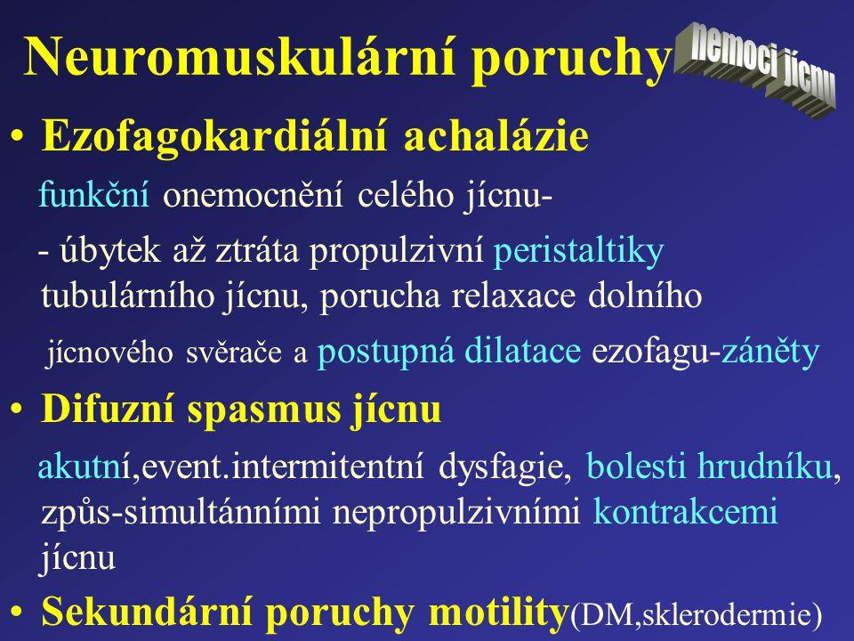 Neuromuskulární poruchy