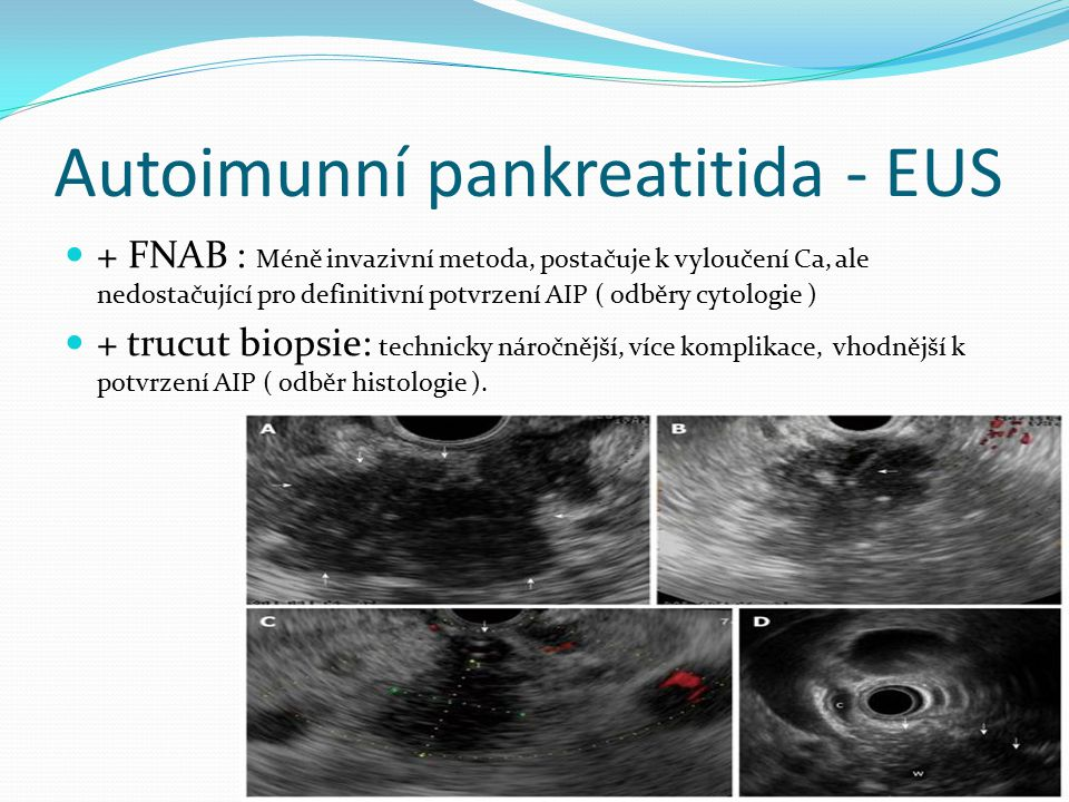 Autoimunní pankreatitida - EUS