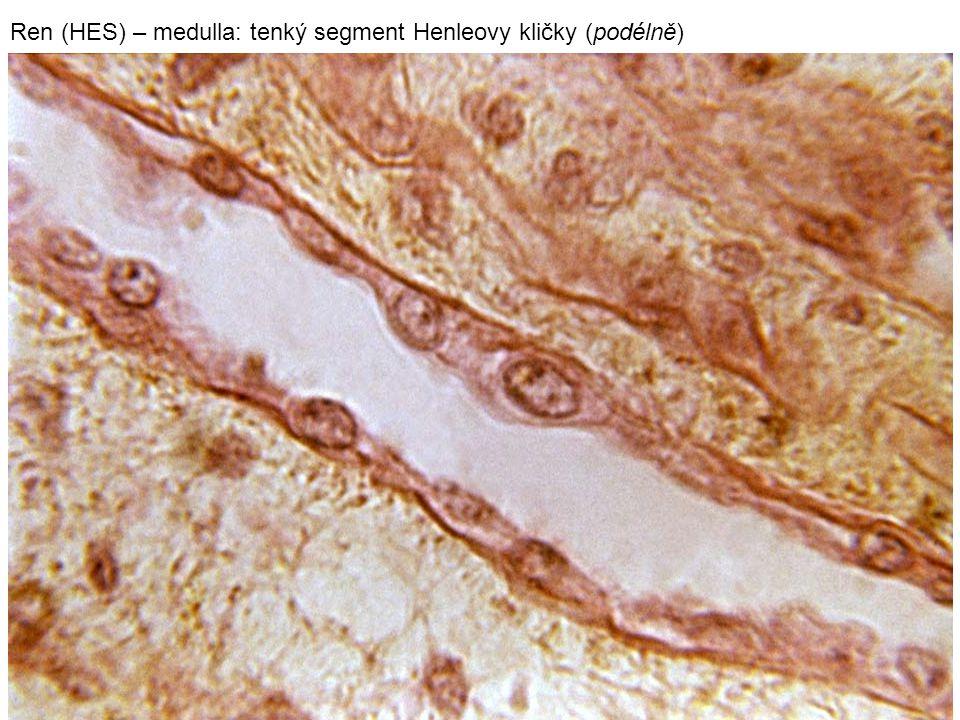 Ren (HES) – medulla: tenký segment Henleovy kličky (podélně)