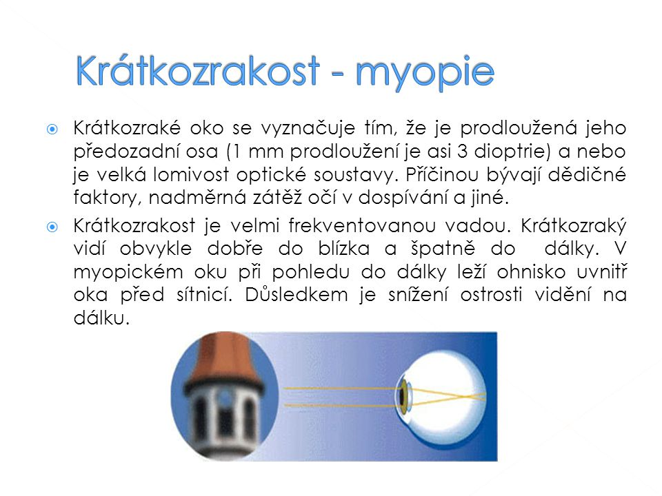 Krátkozrakost - myopie