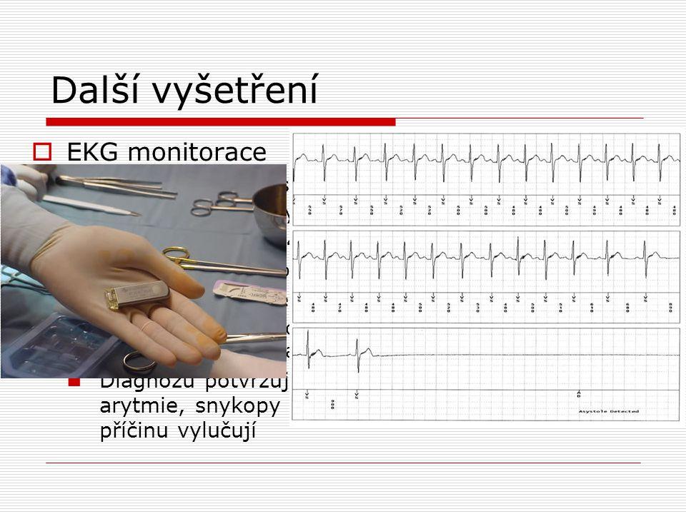 Další vyšetření EKG monitorace Monitorace za hospitaliazce