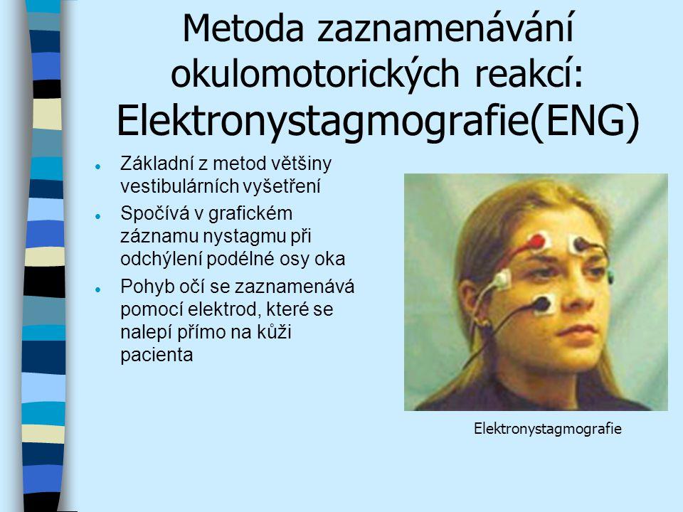 Metoda zaznamenávání okulomotorických reakcí: Elektronystagmografie(ENG)