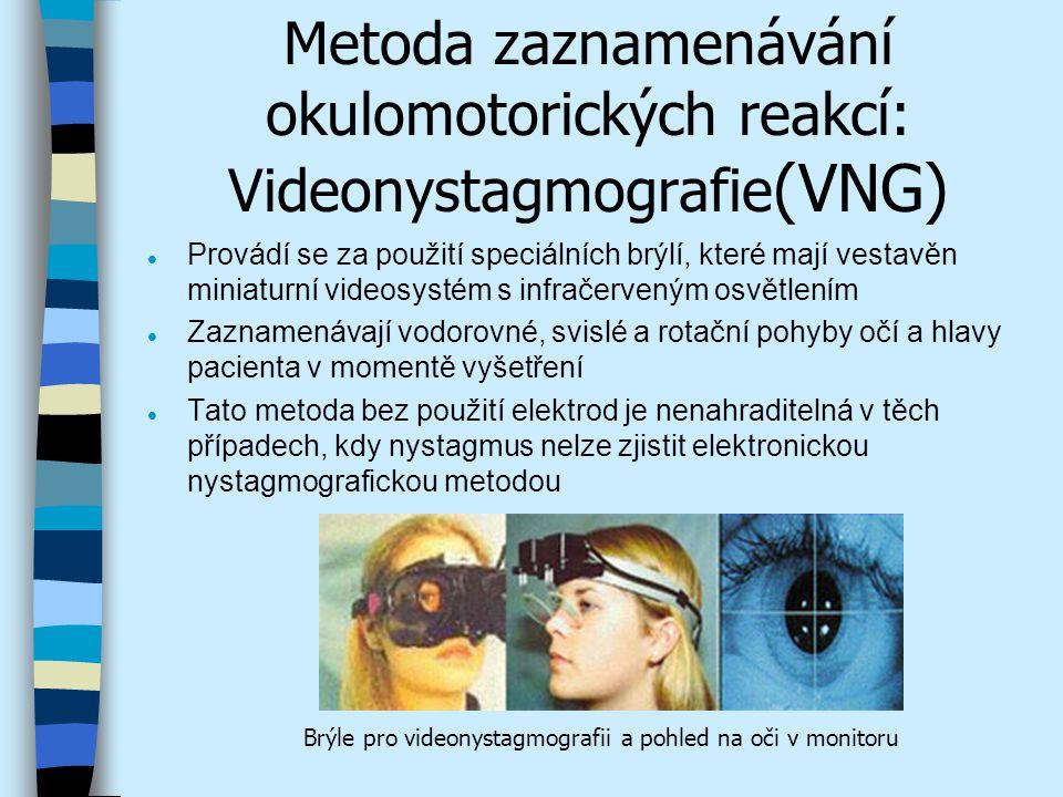 Metoda zaznamenávání okulomotorických reakcí: Videonystagmografie(VNG)