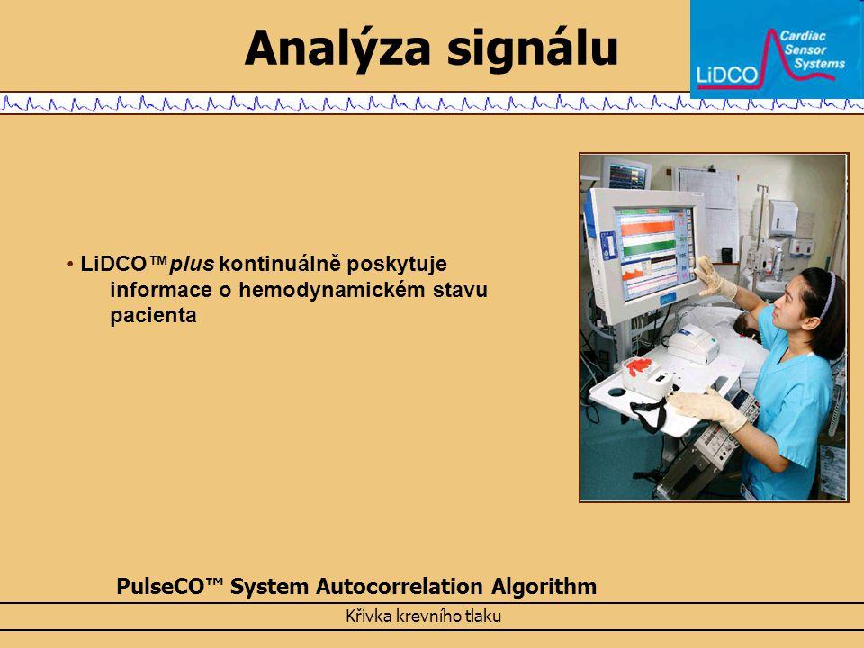 Analýza signálu LiDCO™plus kontinuálně poskytuje