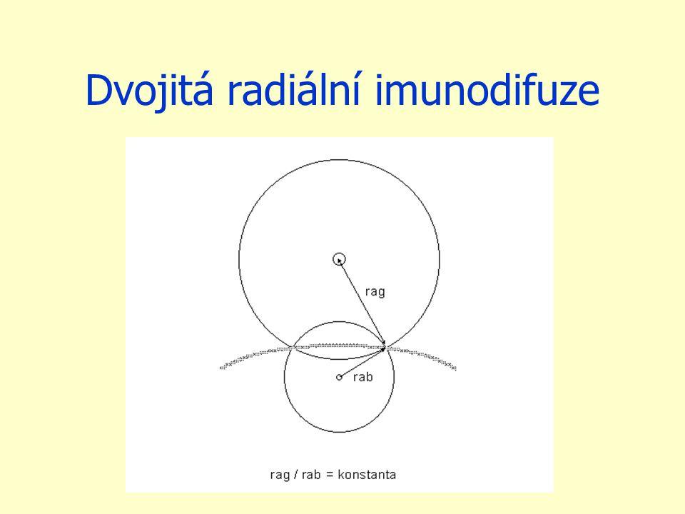 Dvojitá radiální imunodifuze