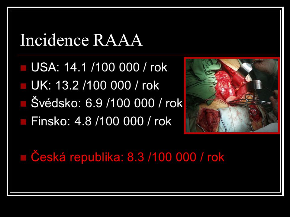 Incidence RAAA USA: 14.1 /100 000 / rok UK: 13.2 /100 000 / rok