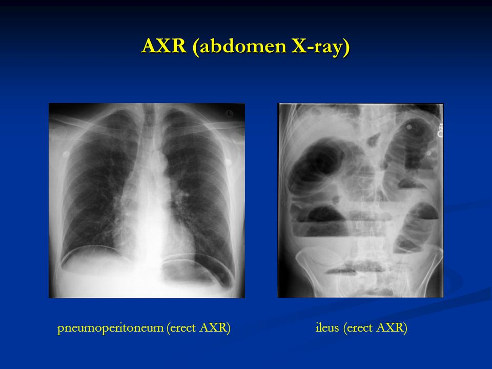 AXR (abdomen X-ray) pneumoperitoneum (erect AXR) ileus (erect AXR)