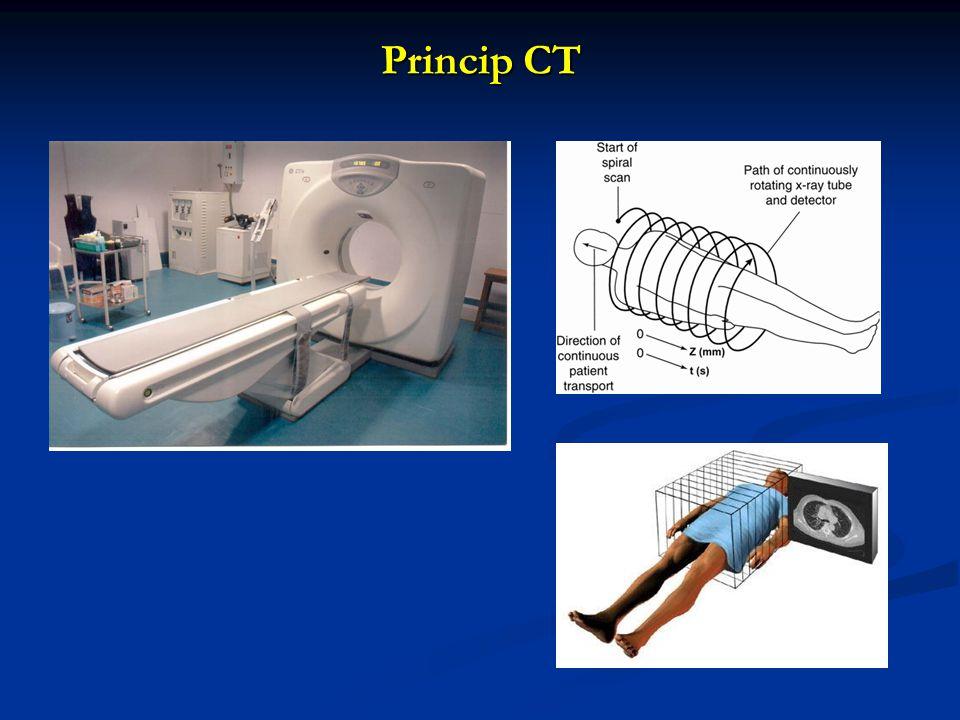 Princip CT