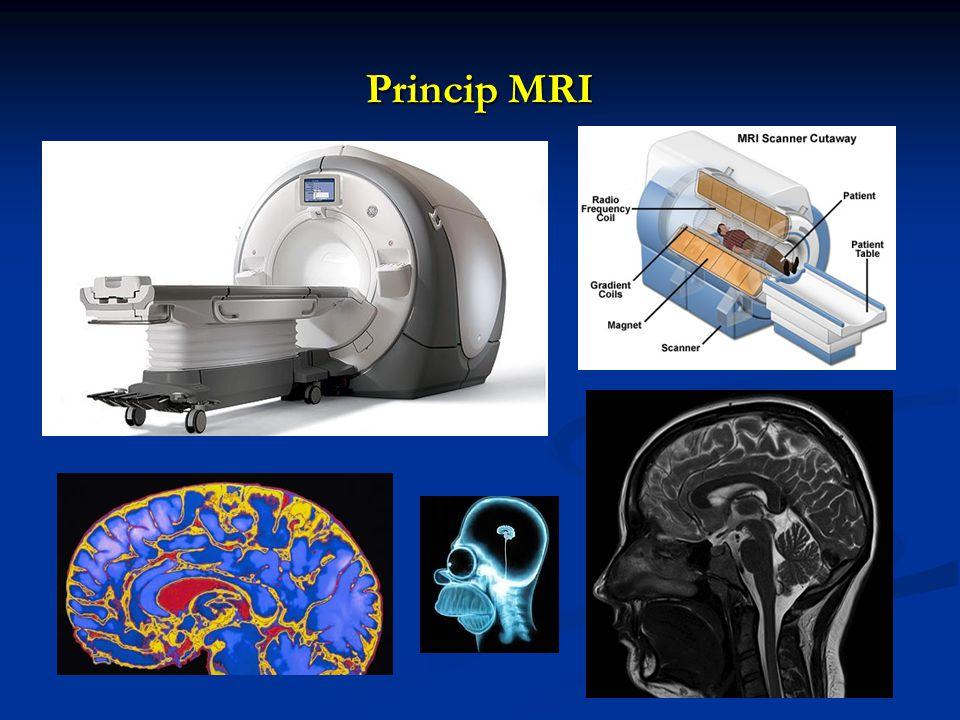 Princip MRI