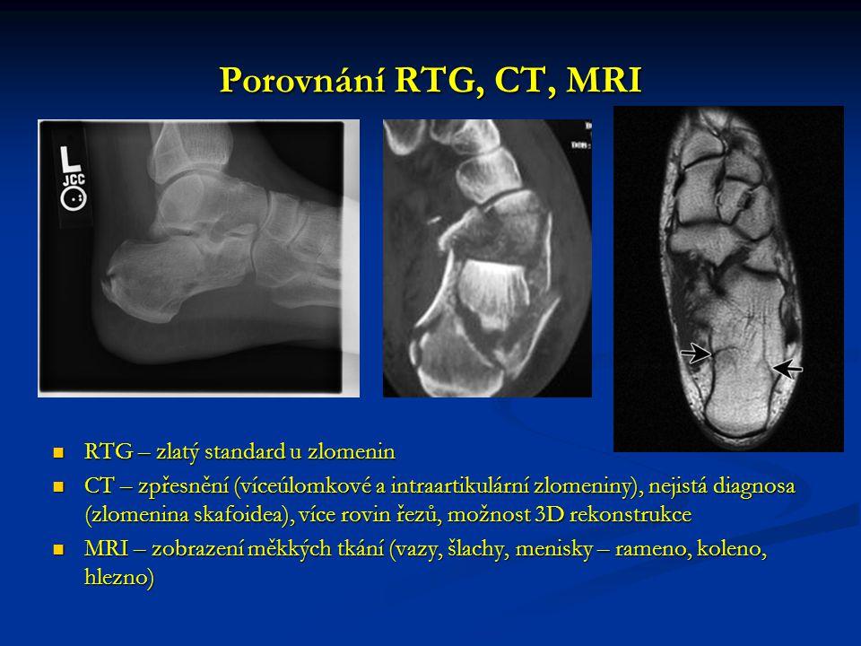Porovnání RTG, CT, MRI RTG – zlatý standard u zlomenin