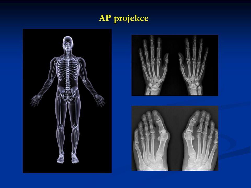 AP projekce