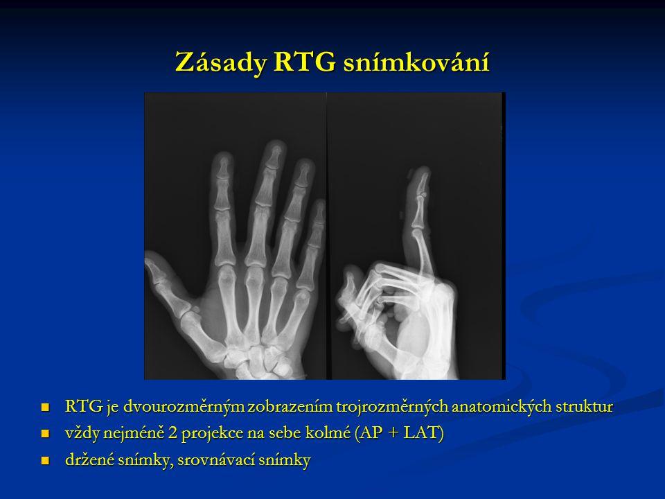 Zásady RTG snímkování RTG je dvourozměrným zobrazením trojrozměrných anatomických struktur. vždy nejméně 2 projekce na sebe kolmé (AP + LAT)