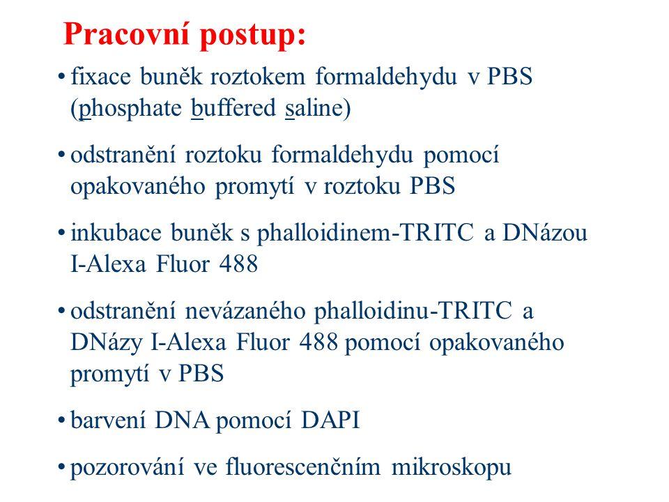 Pracovní postup: fixace buněk roztokem formaldehydu v PBS (phosphate buffered saline)