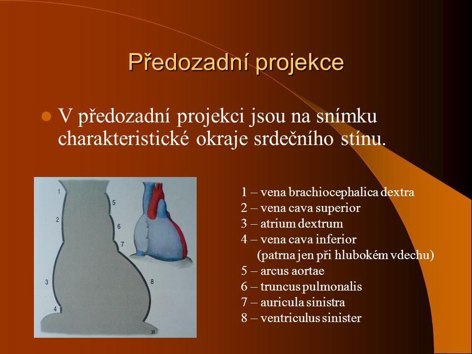 Předozadní projekce V předozadní projekci jsou na snímku charakteristické okraje srdečního stínu. 1 – vena brachiocephalica dextra.