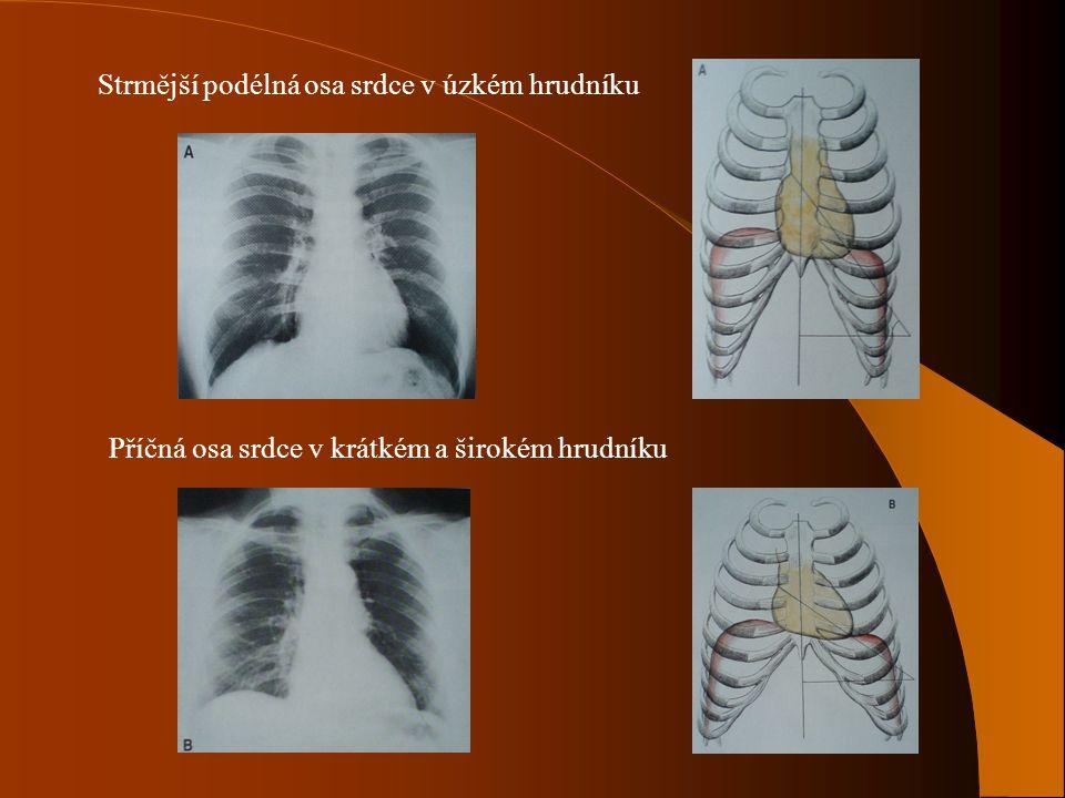 Strmější podélná osa srdce v úzkém hrudníku