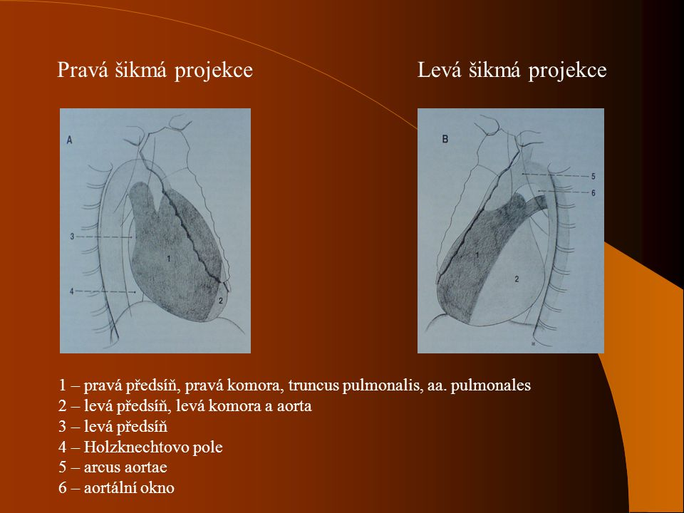 Pravá šikmá projekce Levá šikmá projekce