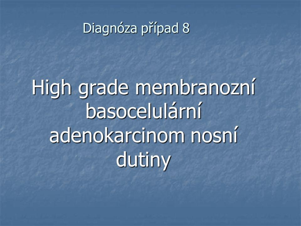 High grade membranozní basocelulární adenokarcinom nosní dutiny