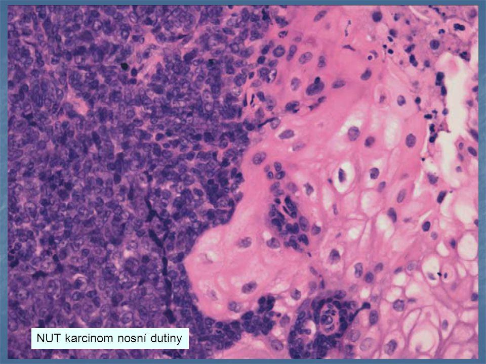 NUT karcinom nosní dutiny