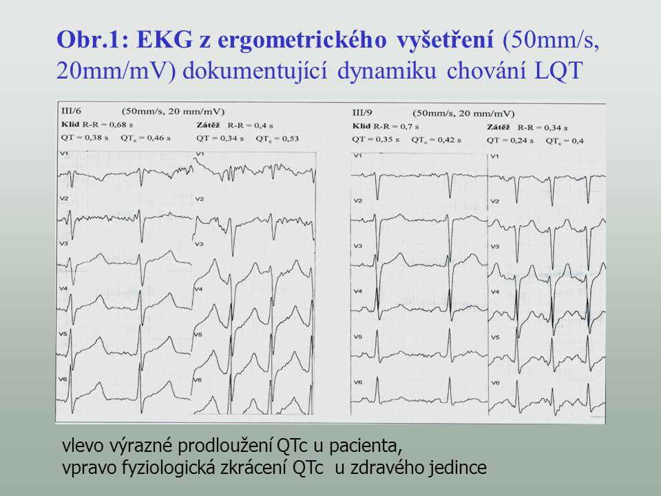 Obr.1: EKG z ergometrického vyšetření (50mm/s, 20mm/mV) dokumentující dynamiku chování LQT