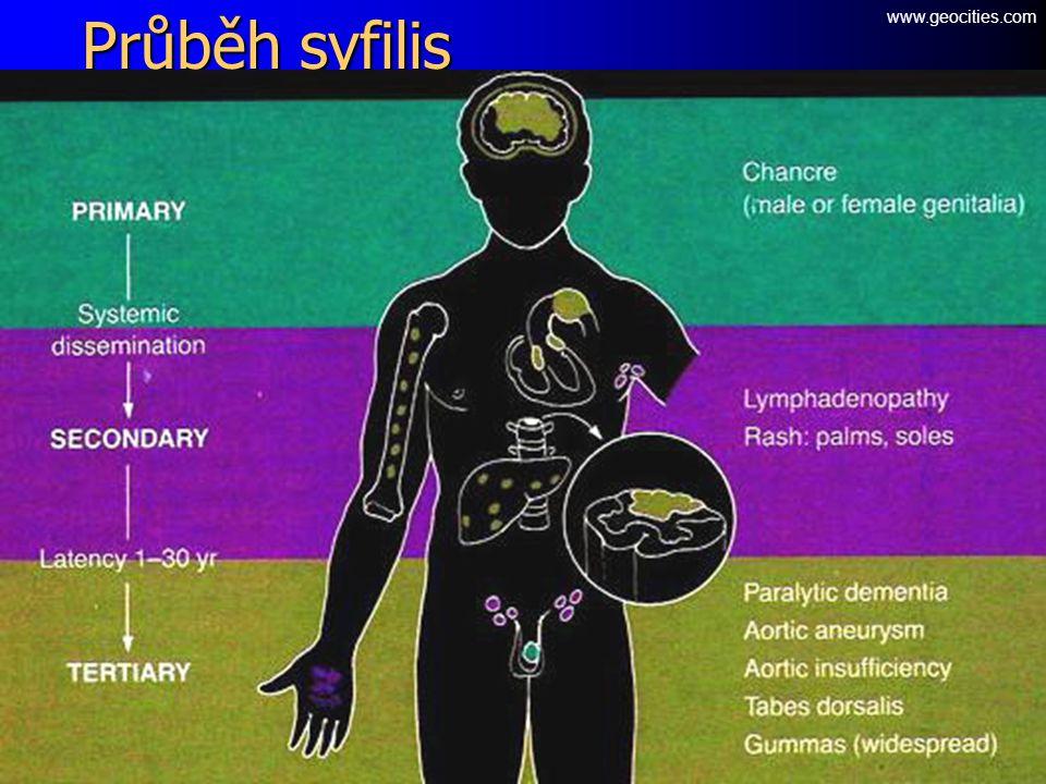 Průběh syfilis www.geocities.com