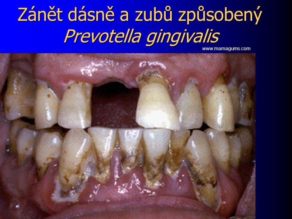 Zánět dásně a zubů způsobený Prevotella gingivalis