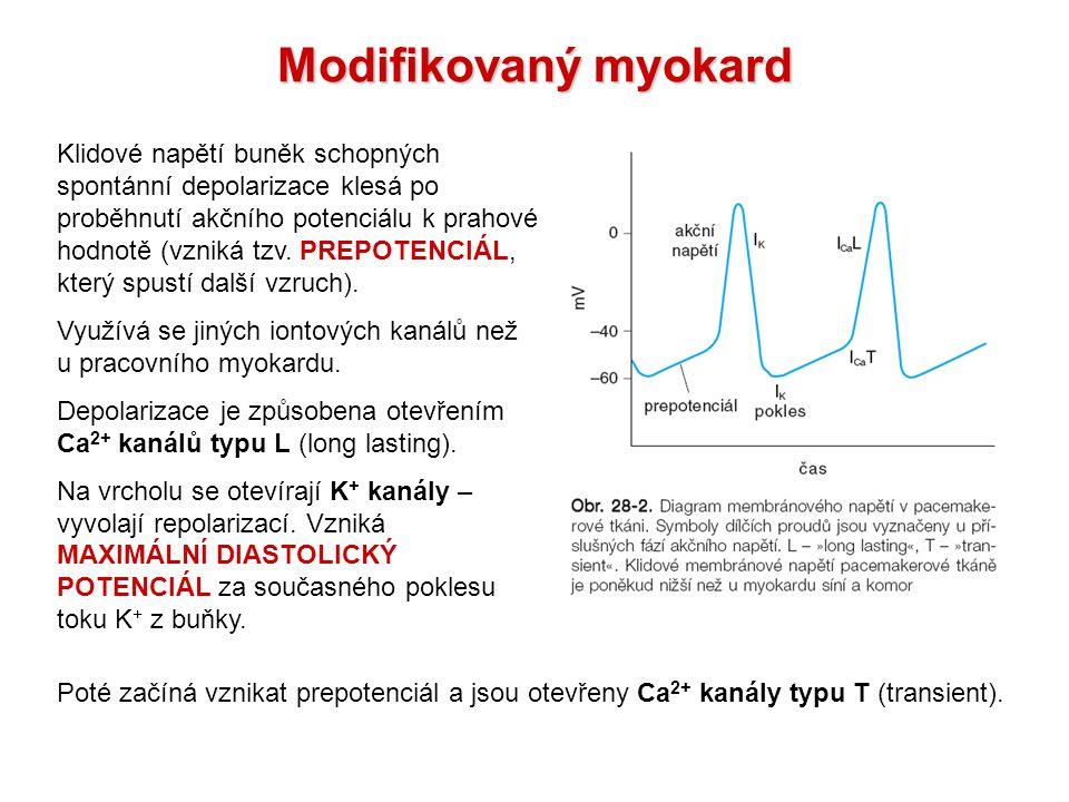 Modifikovaný myokard