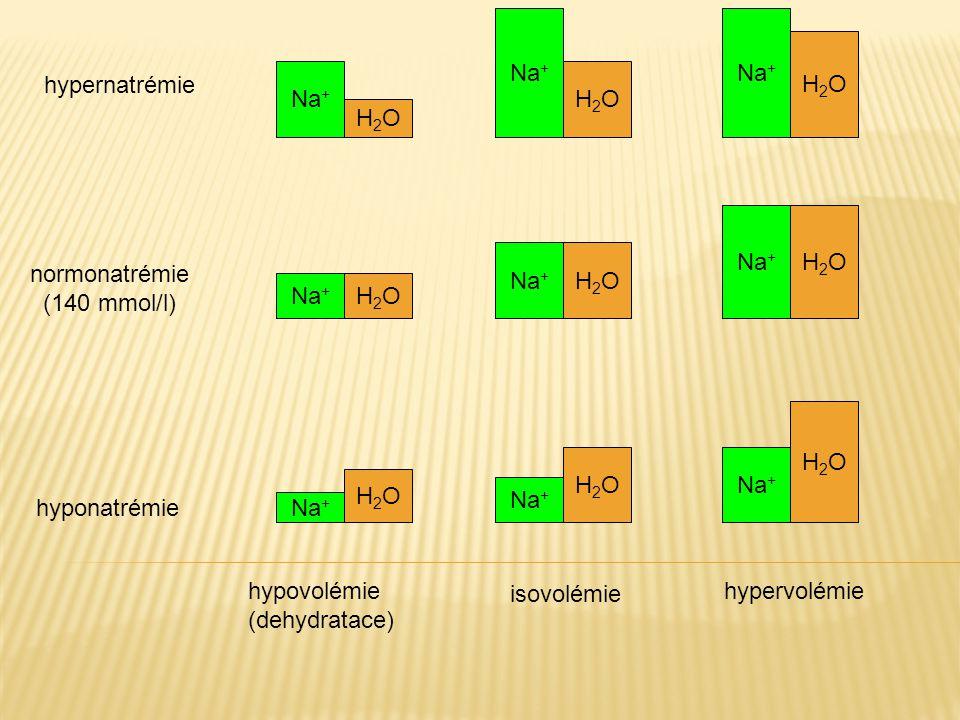 Na+ Na+ H2O. hypernatrémie. Na+ H2O. H2O. Na+ H2O. Na+ H2O. normonatrémie. (140 mmol/l) Na+