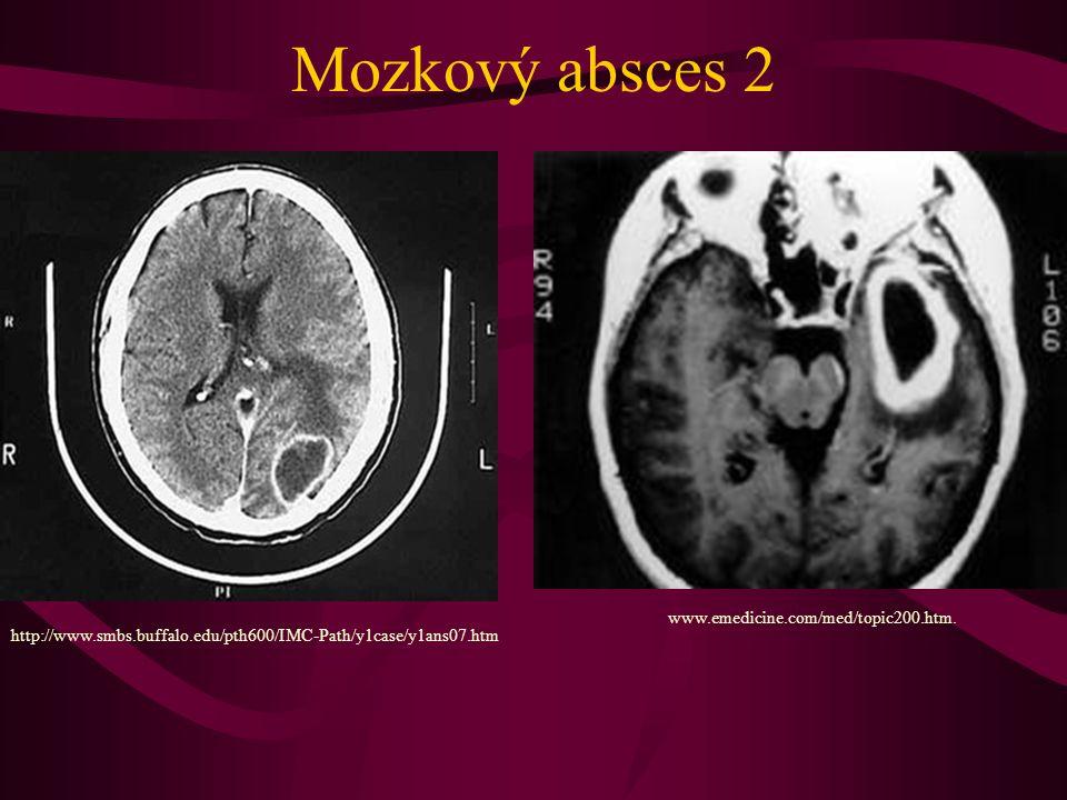 Mozkový absces 2 www.emedicine.com/med/topic200.htm.