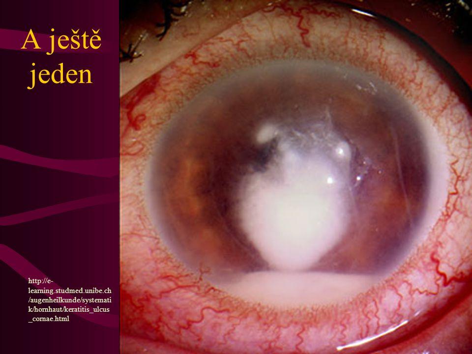 A ještě jeden http://e-learning.studmed.unibe.ch/augenheilkunde/systematik/hornhaut/keratitis_ulcus_cornae.html.