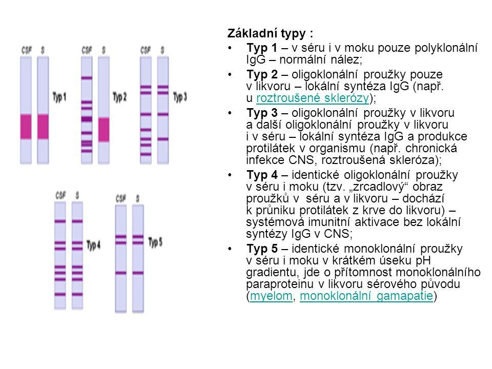 Základní typy : Typ 1 – v séru i v moku pouze polyklonální IgG – normální nález;