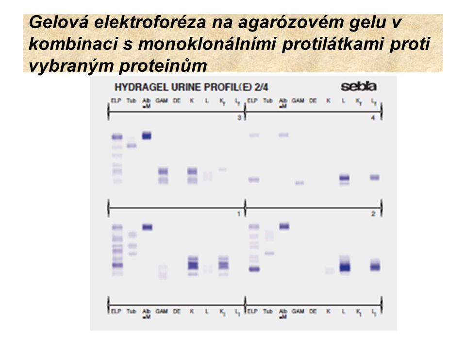 Gelová elektroforéza na agarózovém gelu v kombinaci s monoklonálními protilátkami proti vybraným proteinům