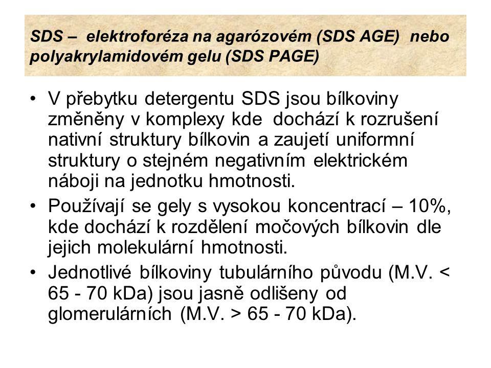 SDS – elektroforéza na agarózovém (SDS AGE) nebo polyakrylamidovém gelu (SDS PAGE)