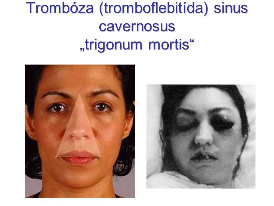 "Trombóza (tromboflebitída) sinus cavernosus ""trigonum mortis"