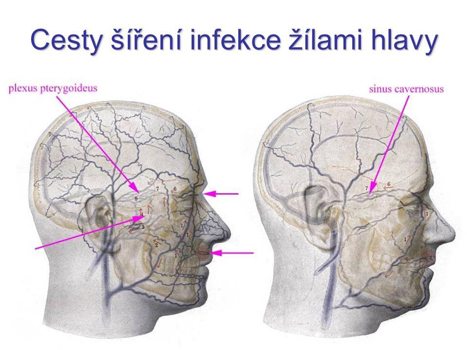 Cesty šíření infekce žílami hlavy