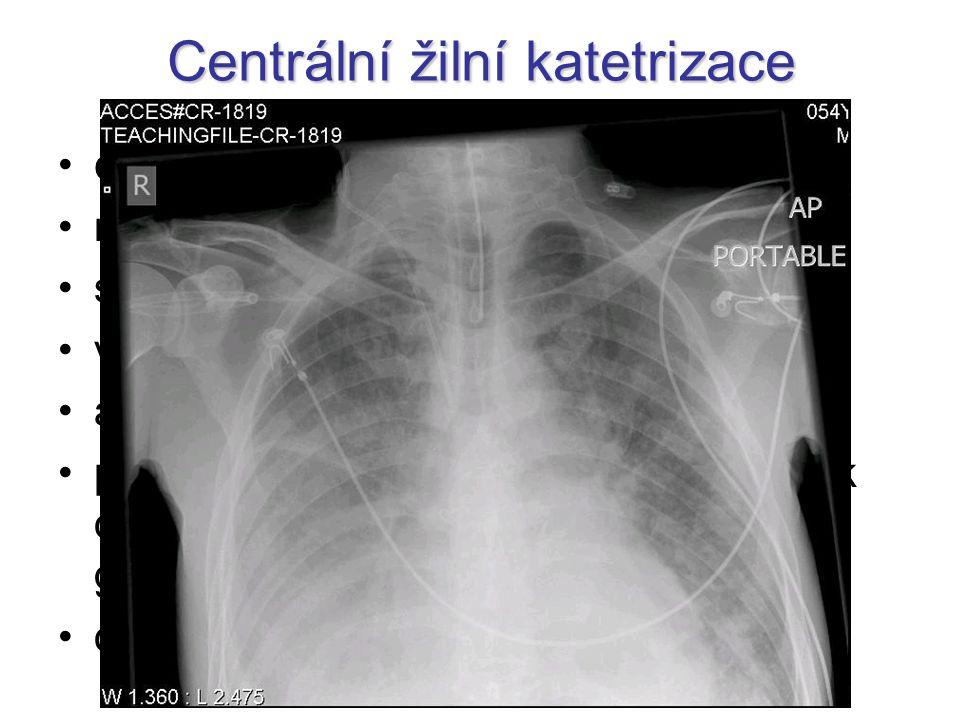 Centrální žilní katetrizace