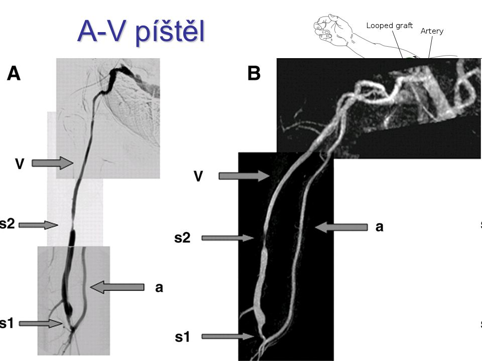 A-V píštěl iatrogenní dialýza radiocefalická
