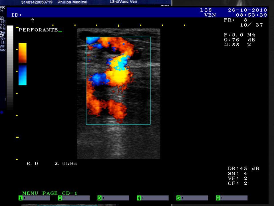 4-mm tibiální perforátor