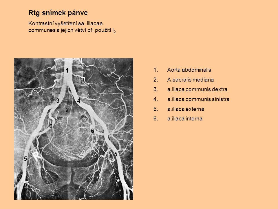 Rtg snímek pánve Kontrastní vyšetření aa. iliacae communes a jejich větví při použití I2. 1. Aorta abdominalis.
