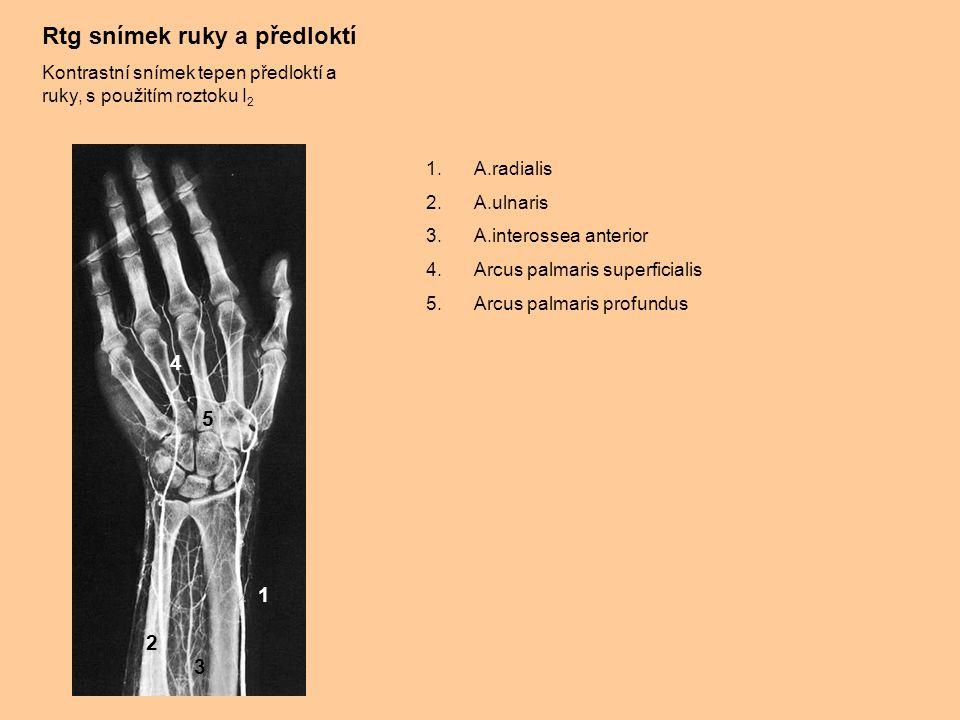 Rtg snímek ruky a předloktí