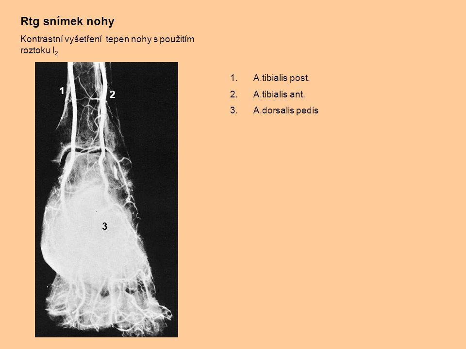 Rtg snímek nohy Kontrastní vyšetření tepen nohy s použitím roztoku I2. A.tibialis post. A.tibialis ant.