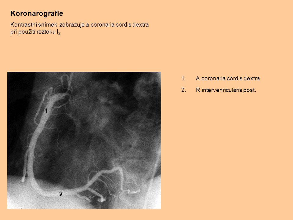 Koronarografie Kontrastní snímek zobrazuje a.coronaria cordis dextra při použití roztoku I2. A.coronaria cordis dextra.