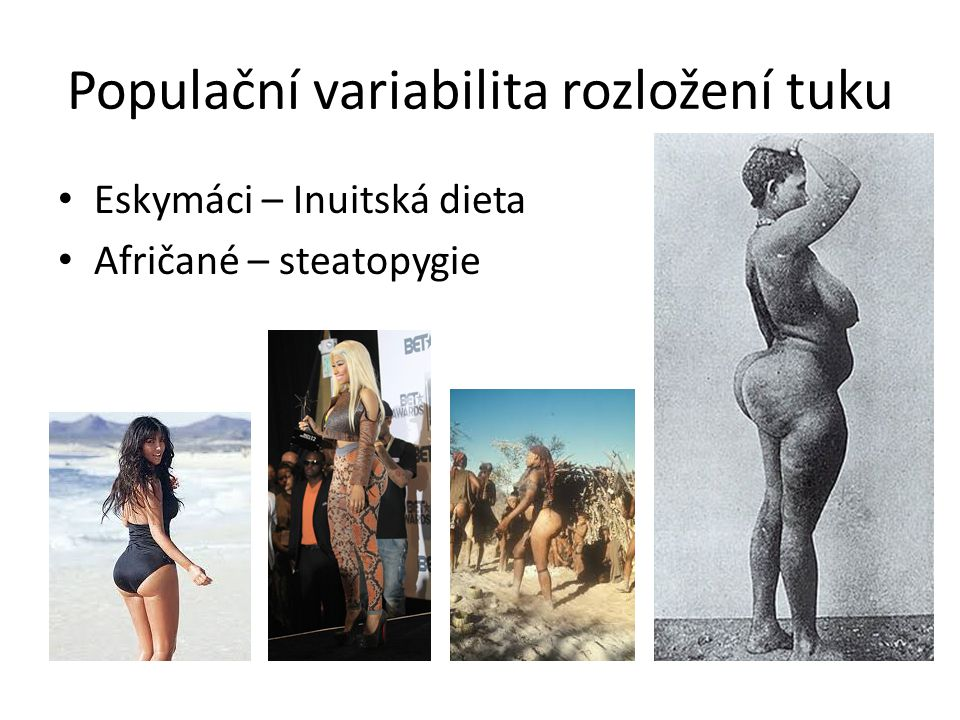 Populační variabilita rozložení tuku