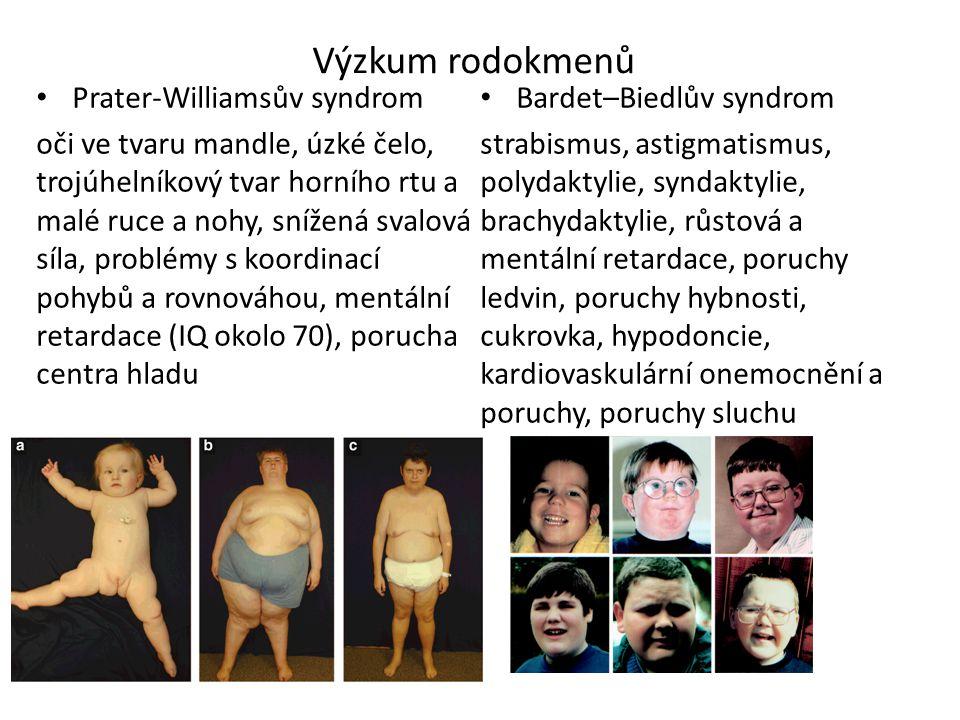 Výzkum rodokmenů Prater-Williamsův syndrom Bardet–Biedlův syndrom