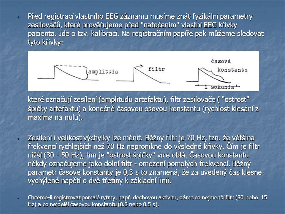 Před registrací vlastního EEG záznamu musíme znát fyzikální parametry zesilovačů, které prověřujeme před natočením vlastní EEG křivky pacienta. Jde o tzv. kalibraci. Na registračním papíře pak můžeme sledovat tyto křivky: