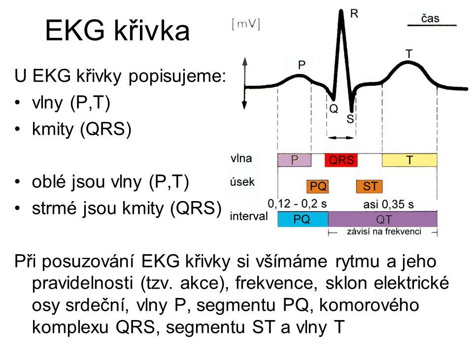 EKG křivka U EKG křivky popisujeme: vlny (P,T) kmity (QRS)