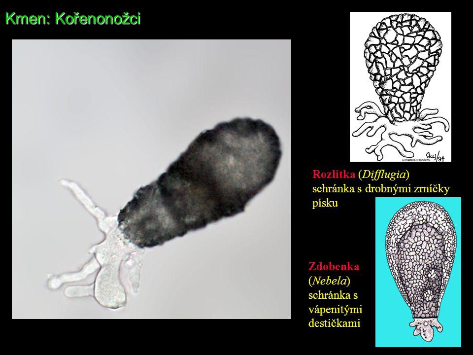 Kmen: Kořenonožci Rozlitka (Difflugia) schránka s drobnými zrníčky
